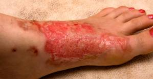 Severe Burn Injuries