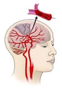 Diabetes induced stroke